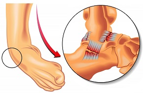 Foot and Ankle Ligament Sprains: The most common ankle injury. Learn about common causes, symptoms, diagnosis, treatment & prevention