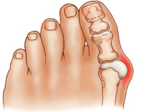 Bunions are a common cause of big toe joint pain