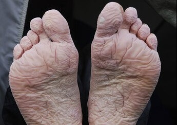 Now a common feature at festivals, trench foot dates back to the awful conditions in the trenches in WW1