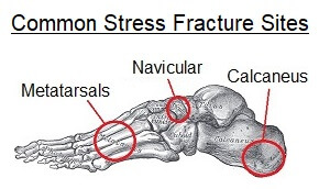 Common site of stress fractures which cause pain on bottom of foot
