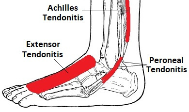Foot Ankle Tendonitis Causes Symptoms Treatment
