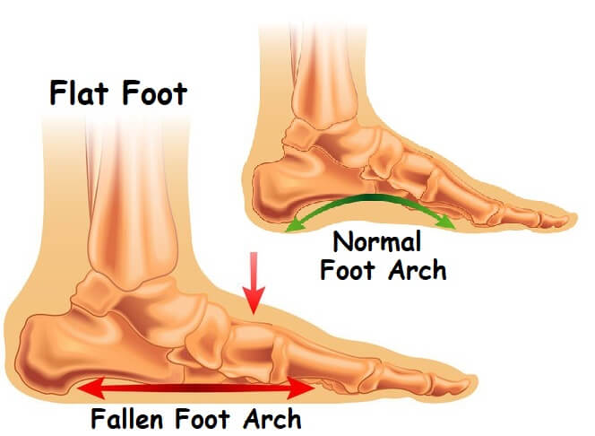 The link between Foot Arch Pain and Flat Feet - which one comes first!?