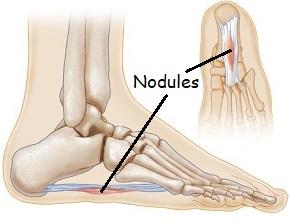 Foot Arch Pain - Plantar Fibromatosis: Common causes, symptoms, diagnosis & treatment options