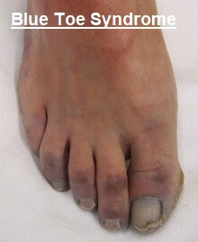 Blue Toe Syndrome Symptoms Causes Treatment