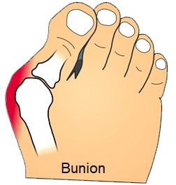 Bunions, aka hallux abducto valgus, are a common cause of pain on the outside of the foot