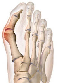 A bunion operation aims to remove excess areas of bone growth and realign the toe