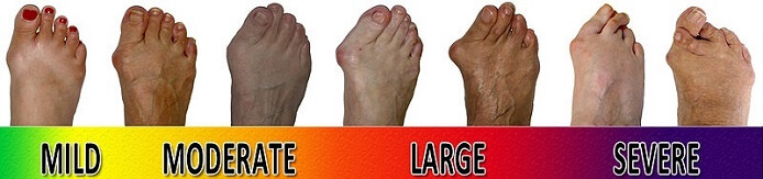 Foot Bunion progression scale