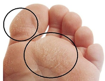 Foot Corns \u0026 Calluses: Causes