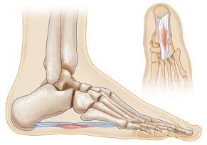 Plantar Fibromatosis, aka Ledderhose Disease, causes foot pain in the sole. Causes, symptoms, diagnosis & treatment