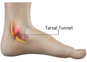 Tarsal Tunnel Syndrome causes foot pain, tingling and numbness underneath the foot and on the inner ankle. Learn about causes, symptoms, diagnosis & treatment
