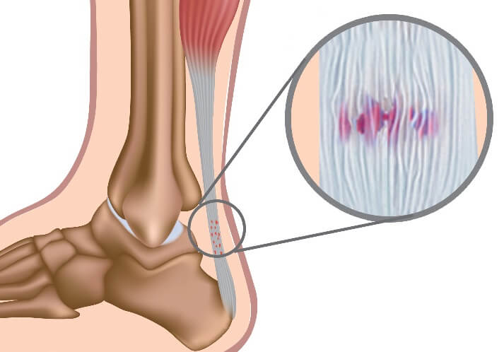 Achilles Tendonitis: a common cause of foot and calf pain. Find out about the causes, symptoms, diagnosis & treatment.