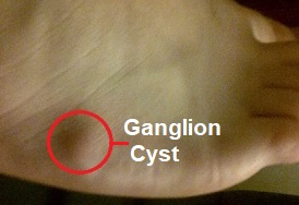 Ganglions are small lumps that form that may or may not cause pain