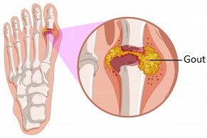 Gout most commonly affects the foot. Check out these simple ways to prevent gout attacks