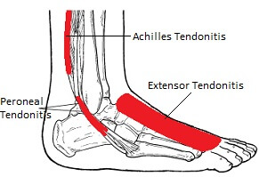 Tendonitis - Inflammation & Degeneration of the Foot Tendons: Causes, symptoms, diagnosis & treatment