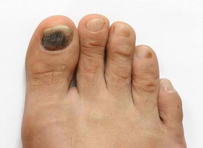 Tennis Toe aka Runners Toe or Subungual Hematoma: Causes, Symptoms, Diagnosis & Treatment