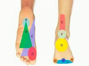 Tableau de diagnostic de la douleur au pied - un excellent outil pour vous aider à déterminer ce qui se passe