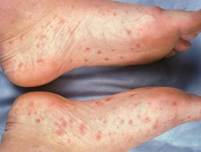 Foot Rashes: Are they serious or not? Find out everything you need to know