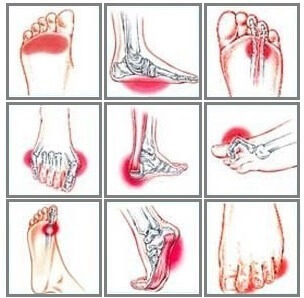 How to treat flat foot pain