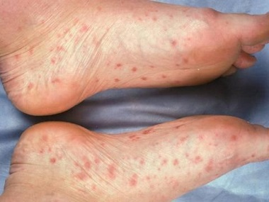 can dry skin cause a rash