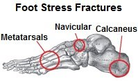 Common sites of foot stress fractures