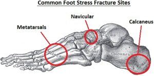 Common sites for stress fracture foot problems to occur
