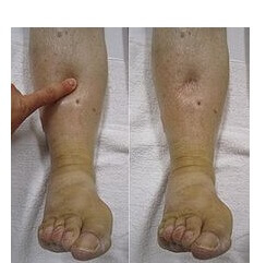 Swollen Feet and Ankles: Causes & Treatment - Foot Pain Explored