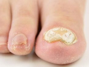 Thick Toenails: Learn about common causes, symptoms and the best treatment options