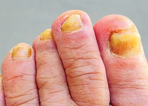 Yellow Toenails: What causes them, and how to tell if it's something serious