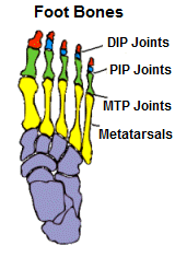 Foot bones and Joints related to Hammer, Claw and Mallet Toe