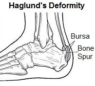 Haglunds deformity is where a bony prominence develops on the back of the heel irritating the surrounding soft tissues