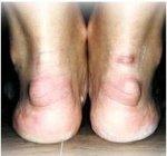 Haglunds deformity presentation