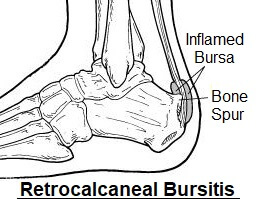 Retrocalcaneal Bursitis is inflammation of the bursa at the back of the heel. It is frequently associated with bone spurs