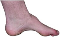 High foot arches increase the risk of developing peroneal tendonitis