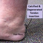Insertional Achilles Tendonitis.  Note the thickening in the tendon at the back of the heel