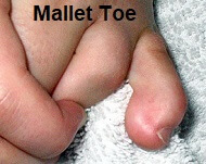 Presentation of Mallet Toe