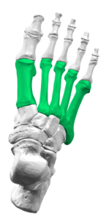 Metatarsalgia causes burning foot pain underneath the metatarsal bones (shown here in green)