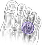 Morton's Neuroma commonly causes pain, tingling and numbness between the toes