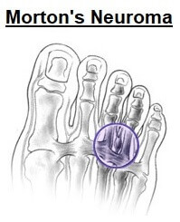 Morton's Neuroma commonly causes pain, tingling and numbness between the toes. Image source https://orthoinfo.aaos.org/en/diseases--conditions/mortons-neuroma
