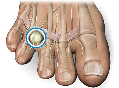 Mortons Neuroma commonly causes pain, tingling and numbness between the toes.