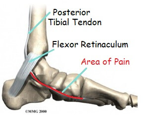 Foot Arch Pain: Posterior Tibial Tendonitis. Causes, symptoms, diagnosis & treatment options