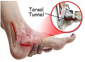 Tarsal Tunnel Syndrome: Find out about this common cause of foot arch pain