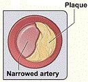Diagram showing typical plaque formation in peripheral artery disease which reduces blood flow
