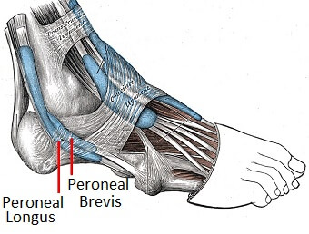 Peroneal Tendonitis causes pain on the outer side of the ankle due to inflammation and degeneration of the peroneal tendons