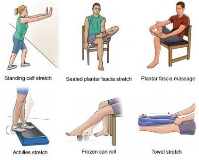 Plantar Fasciitis Exercises: Strengthen and stretch the plantar fascia in the foot