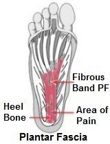 Plantarfascia anatomy