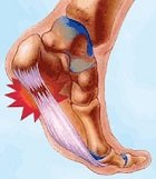 Plantar fasciitis is one of the most common causes of foot arch pain