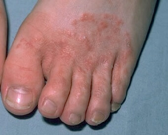 Athlete's foot is a common cause of a foot rash