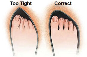 Here you can see the effect of wearing tight fitting footwear - it's no surprise that it's a common cause of foot pain