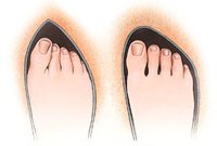 Wearing high heeled, narrow, pointed shoes are likely to increase your risk of developing bunions