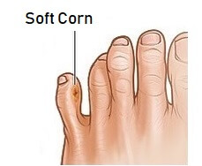 Soft foot corns tend to develop between the toes. Find out about the causes, symptoms, diagnosis and treatment of foot corns
